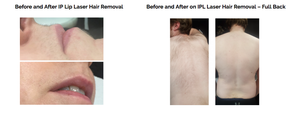 laser-hair-removal-in-Orpington-Bromley