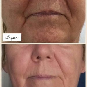 Environ Intense C-Peel Facial
